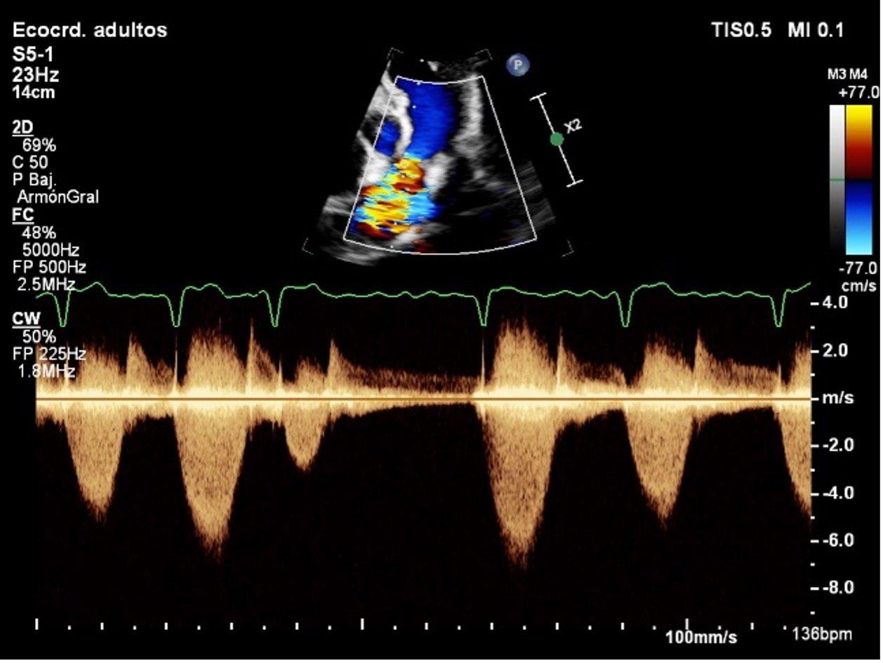 ecocardiograma perro